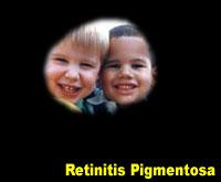Simulation photograph: retinitis pigmentosa