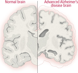 Brain changes in Alzheimer's disease